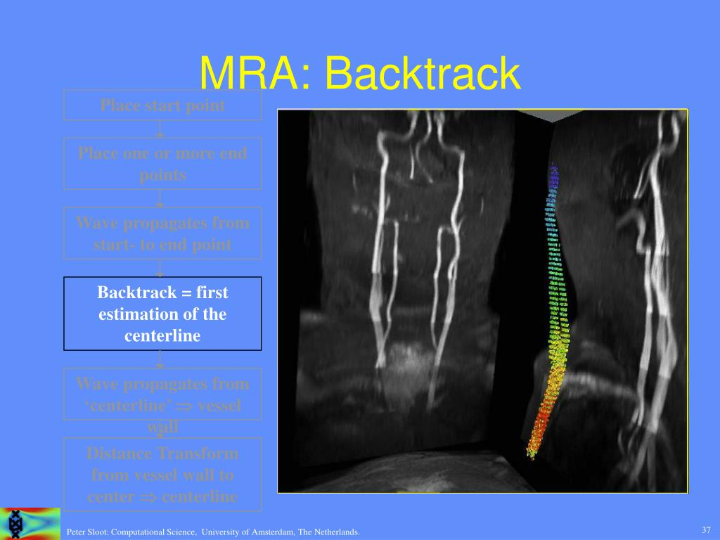 MRA: Backtrack