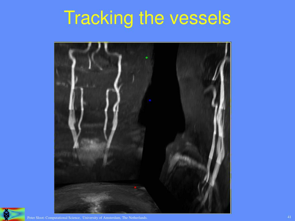 Tracking the vessels