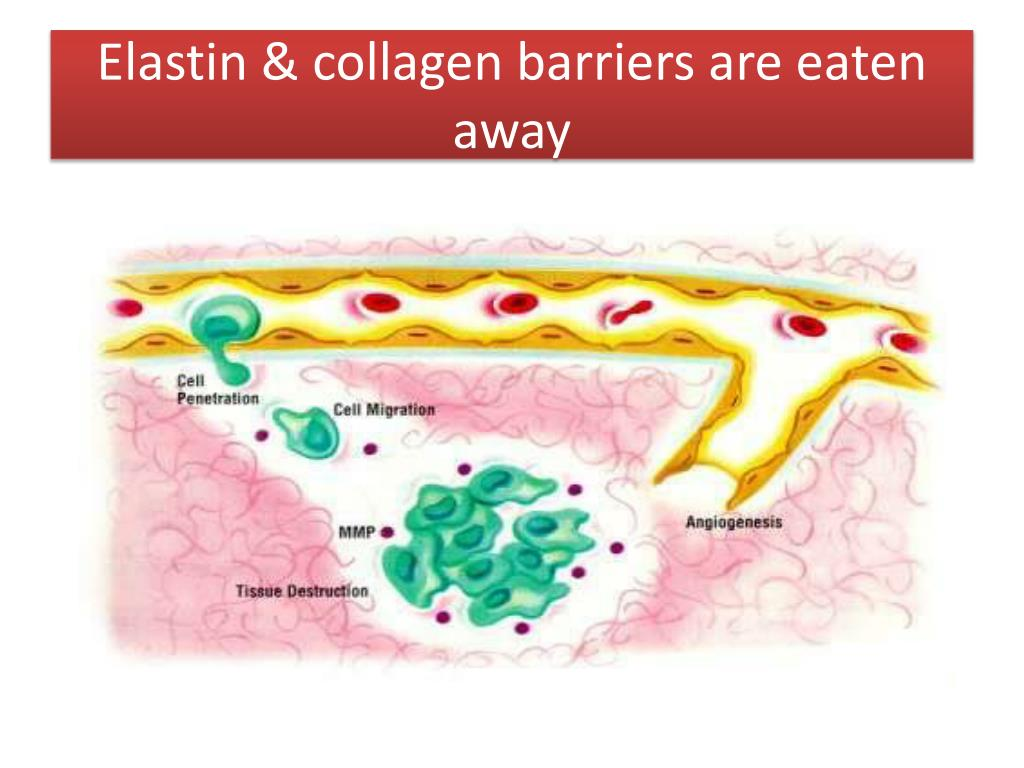 Elastin & collagen barriers are eaten away