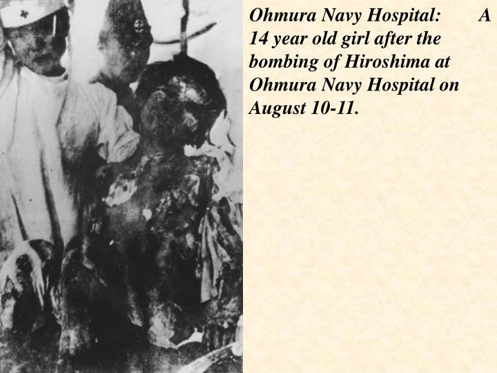 Ohmura Navy Hospital:        A 14 year old girl after the bombing of Hiroshima at Ohmura Navy Hospital on August 10-11.
