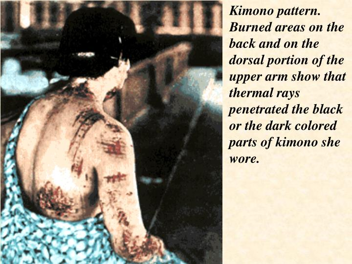 Kimono pattern. Burned areas on the back and on the dorsal portion of the upper arm show that thermal rays penetrated the black or the dark colored parts of kimono she wore.