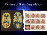 pictures of brain degradation