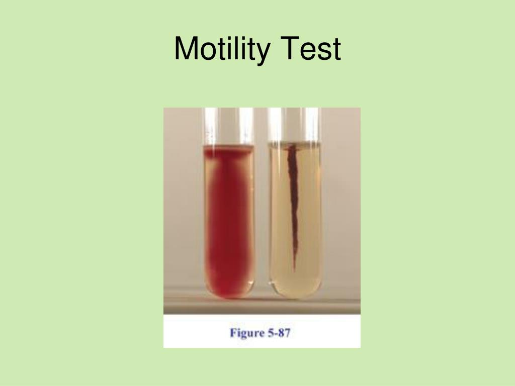 triple sugar test in microbiology essay Micro quiz - ch 25 - triple sugar iron test learn with flashcards, games, and more — for free.