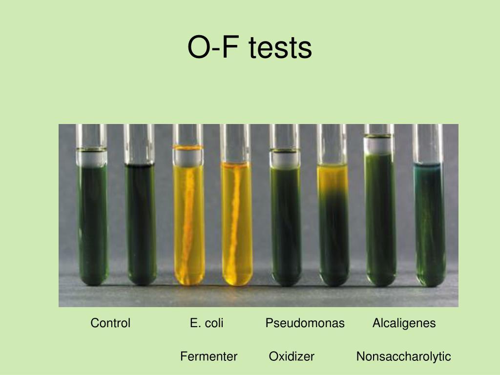 Methyl Red-Voges Proskauer