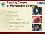 leading causes of preventable blindness