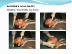 membuka jalan nafas head tild chin lif atau jaw thrust