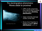 the stocking glove phenomena moves distal to proximal