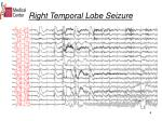 right temporal lobe seizure