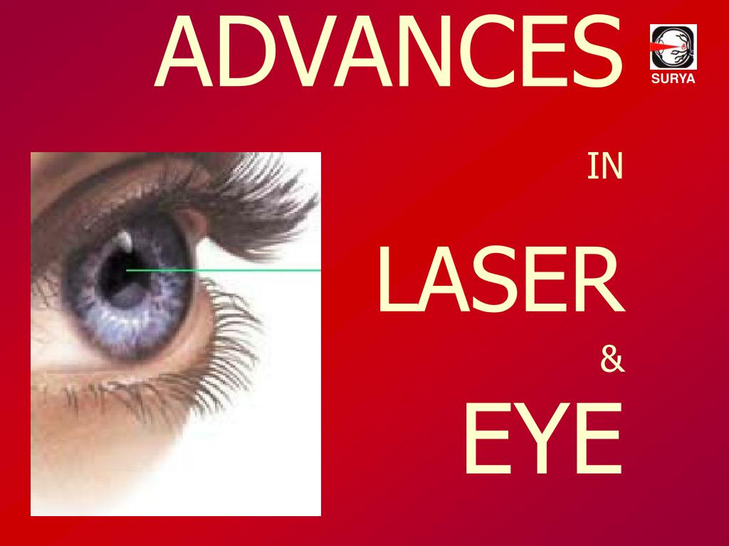advances in laser eye l.