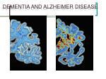 dementia and alzheimer disease