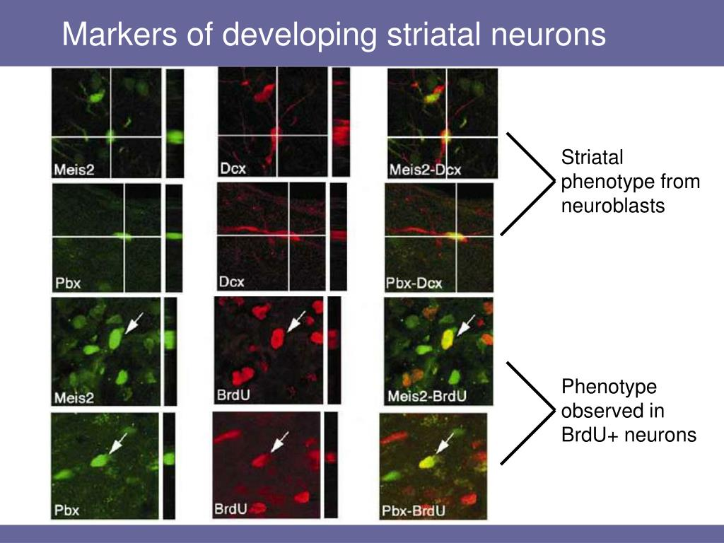 Markers of developing striatal neurons