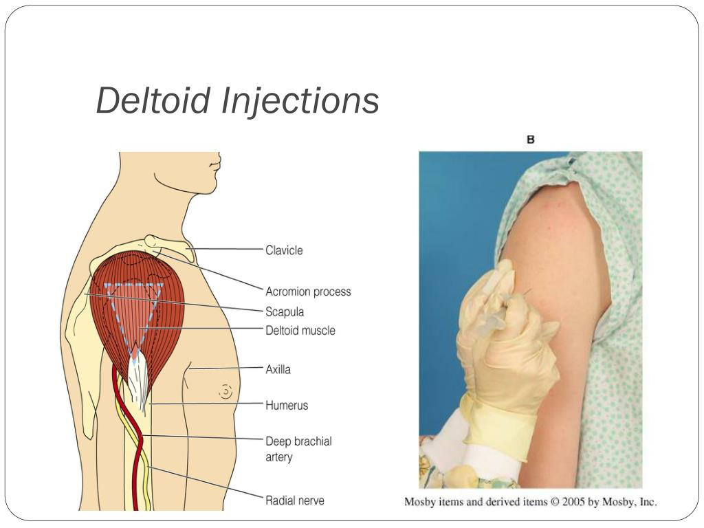 Deltoid Injections