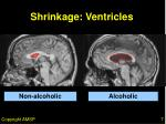 shrinkage ventricles