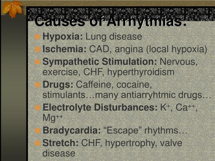 Causes of arrhytmias