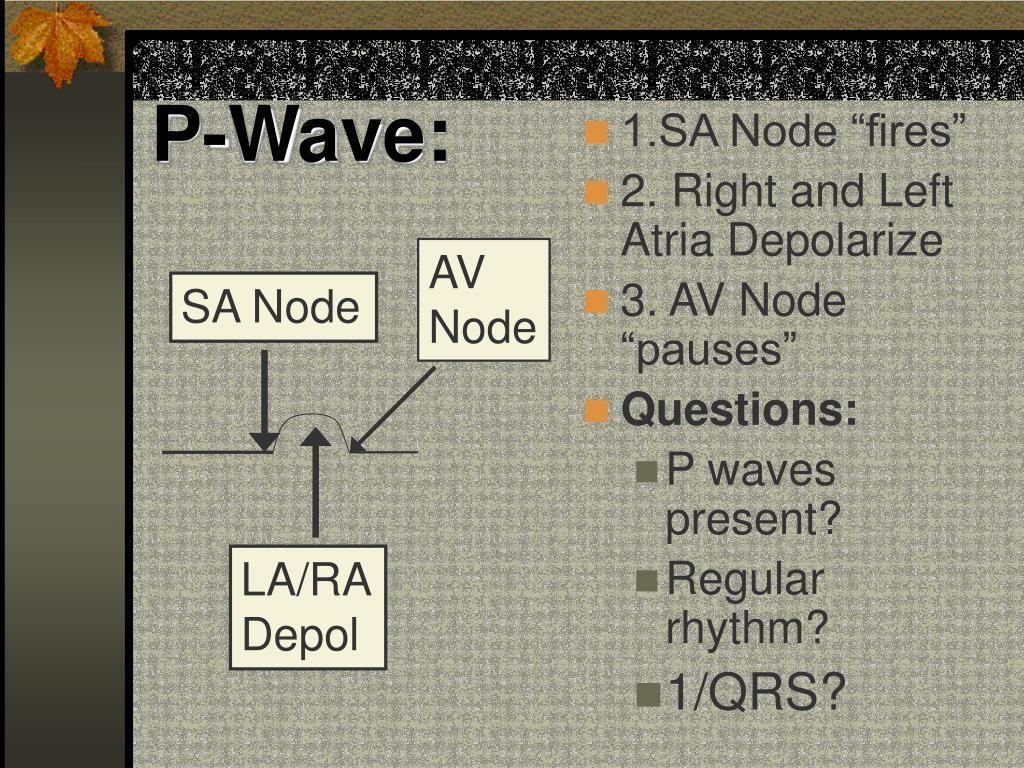 P-Wave: