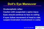 doll s eye maneuver