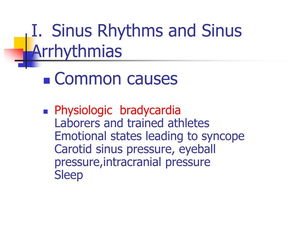 Sinus Rhythms and Sinus