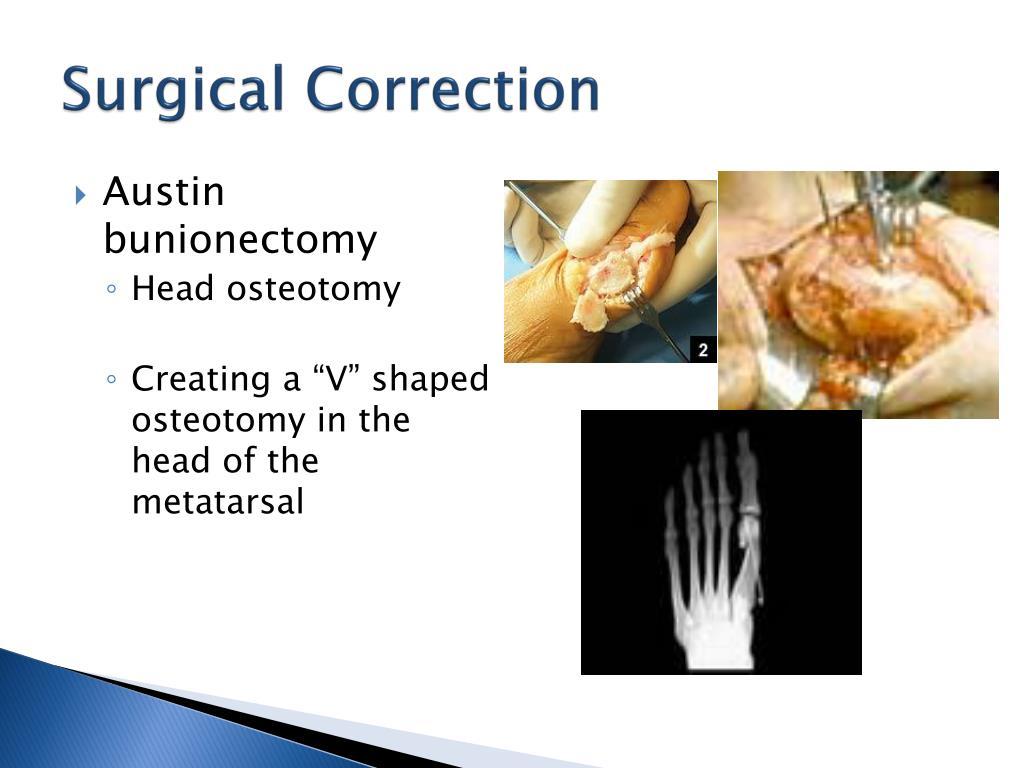 PPT - Modified Lapidus Procedure for Hallux Abducto Valgus (bunion