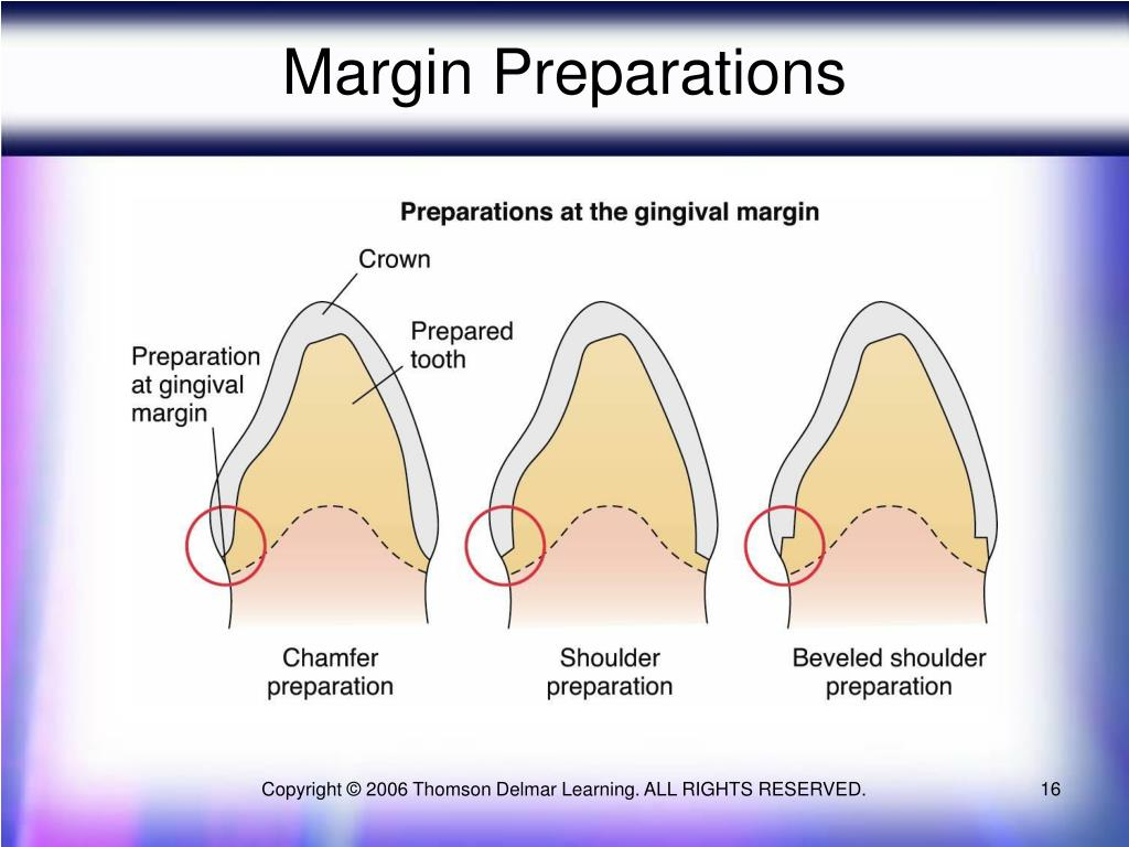 Margin Preparations