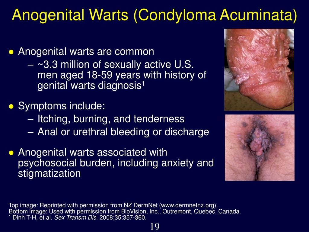 Anogenital warts are common