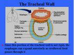 the tracheal wall52