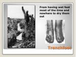 trenchfoot