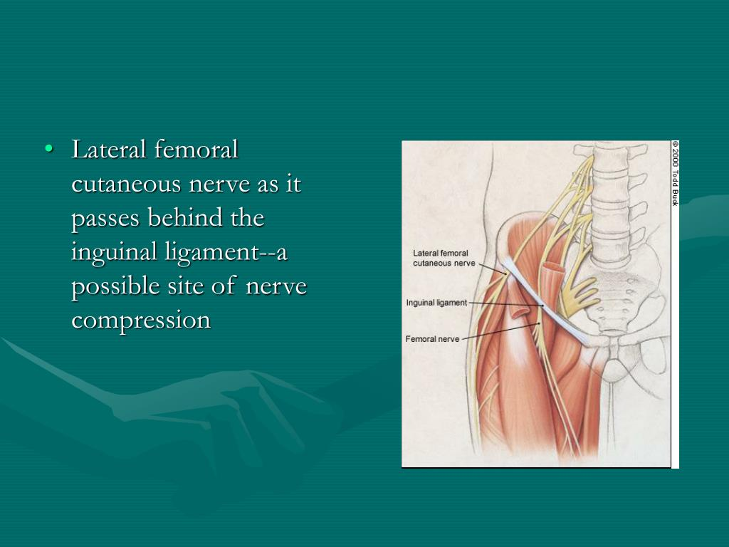Lateral femoral cutaneous nerve as it passes behind the inguinal ligament--a possible site of nerve compression
