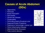 causes of acute abdomen ddx