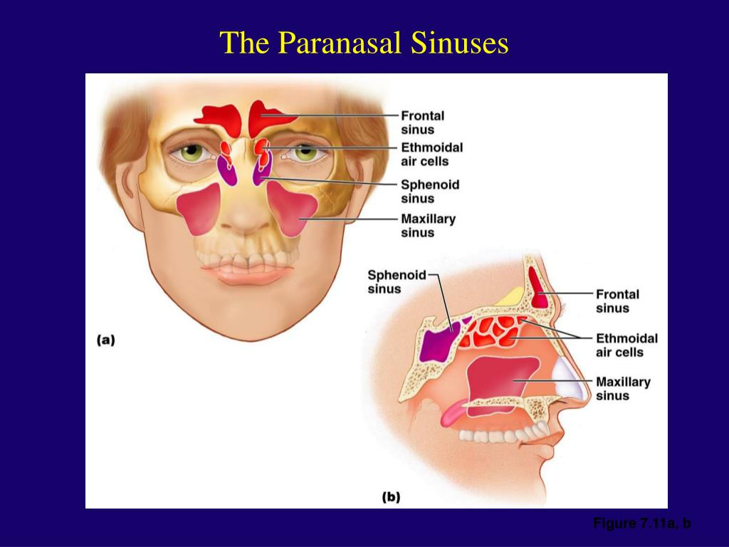 The Paranasal Sinuses