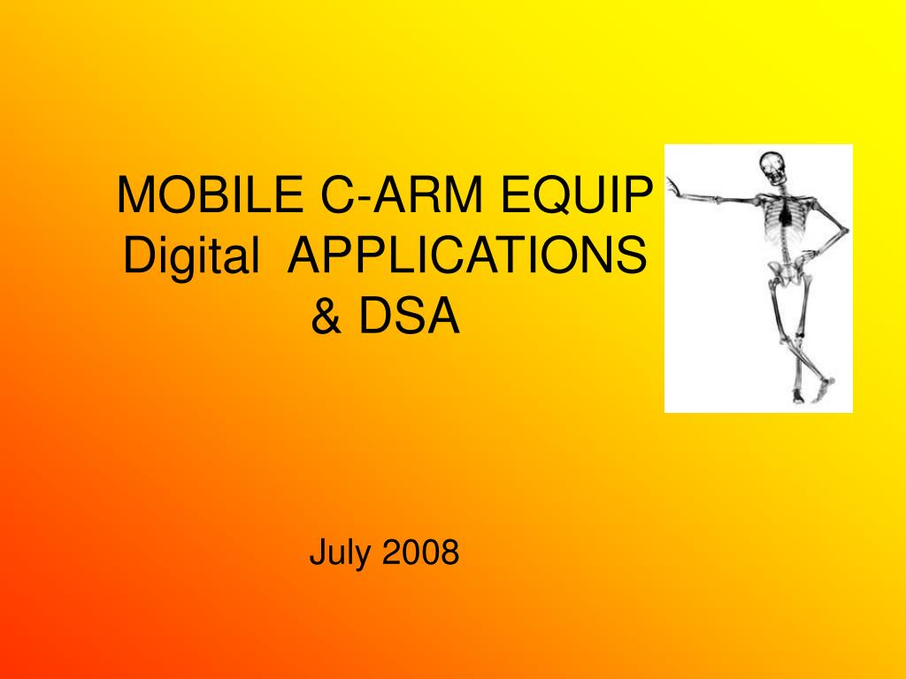 mobile c arm equip digital applications dsa l.
