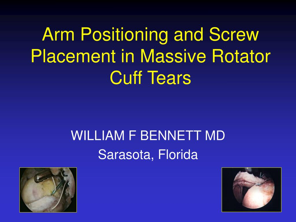 arm positioning and screw placement in massive rotator cuff tears l.