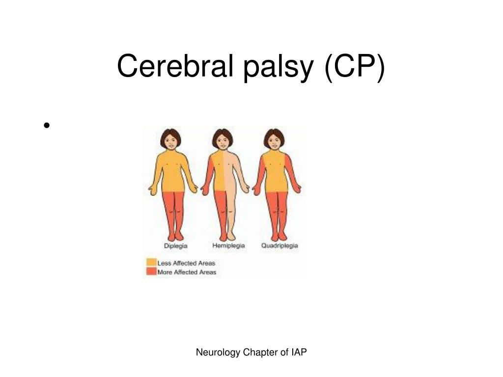 cerebral palsy cp l.