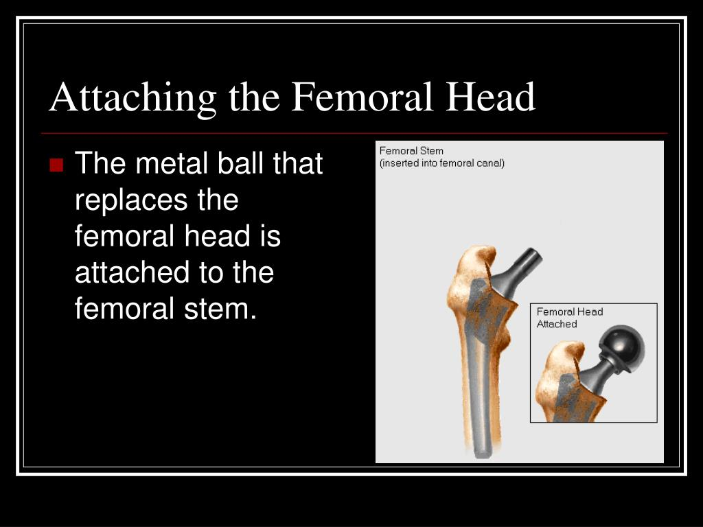 Attaching the Femoral Head