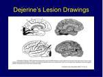dejerine s lesion drawings