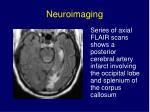 neuroimaging9