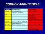 common arrhythmias