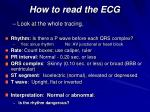 how to read the ecg
