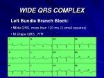wide qrs complex38