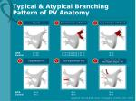 typical atypical branching pattern of pv anatomy
