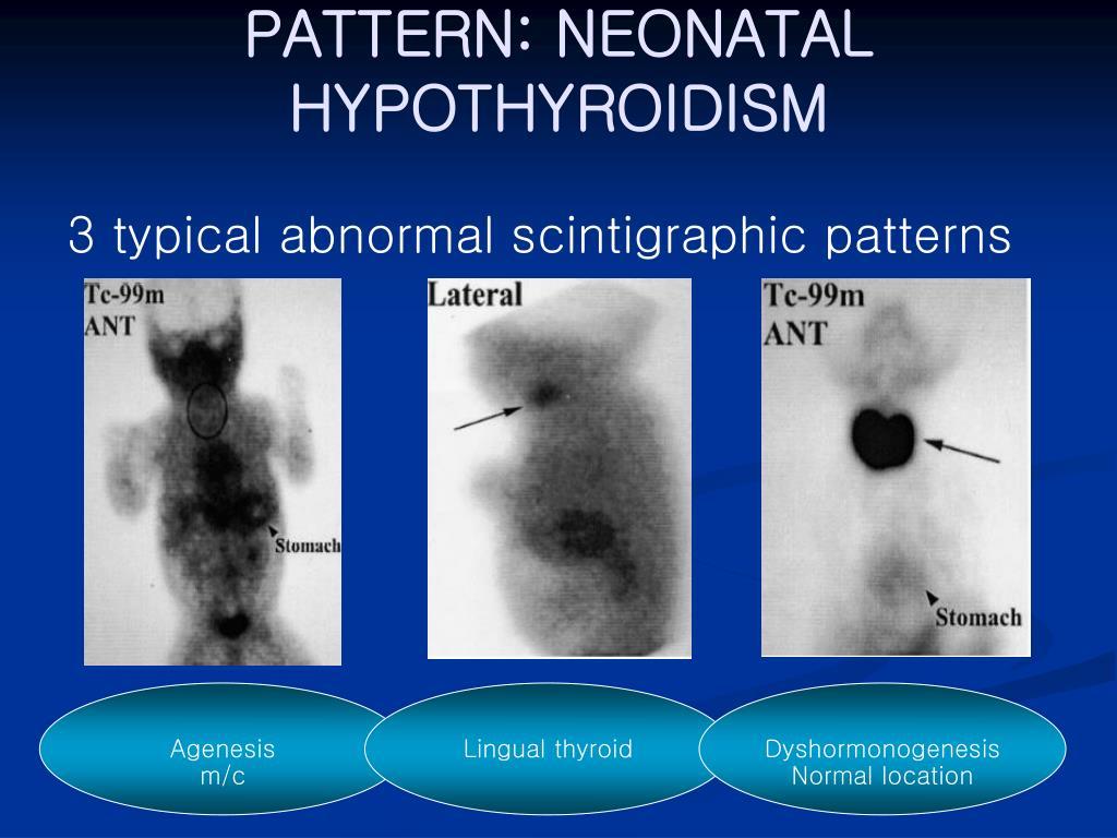 PATTERN: NEONATAL HYPOTHYROIDISM