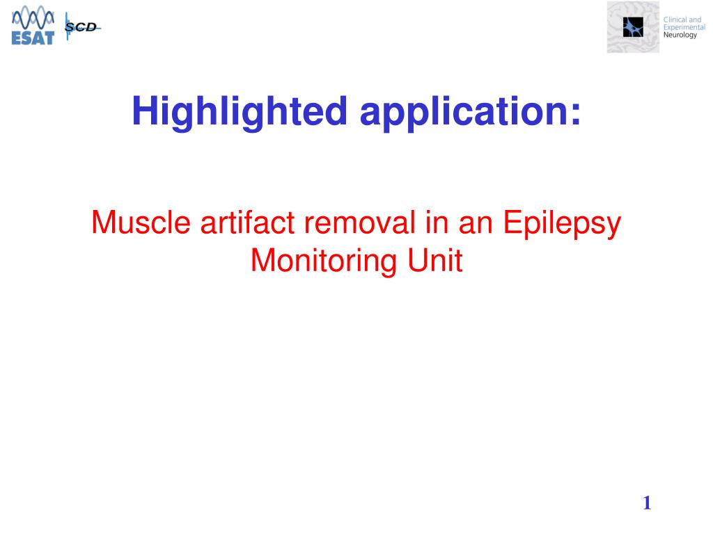 muscle artifact removal in an epilepsy monitoring unit l.