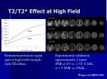 t2 t2 effect at high field