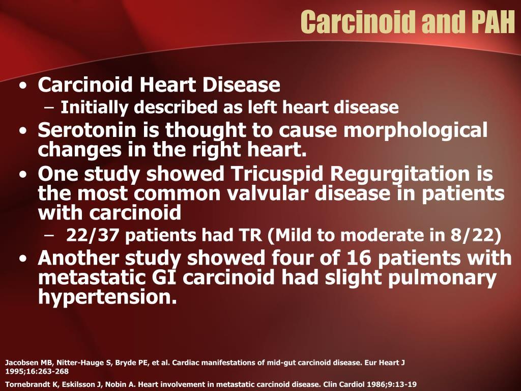 Carcinoid and PAH