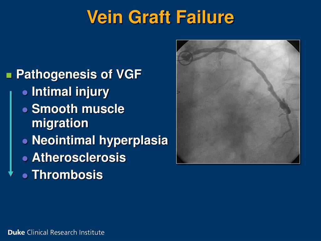 Vein Graft Failure