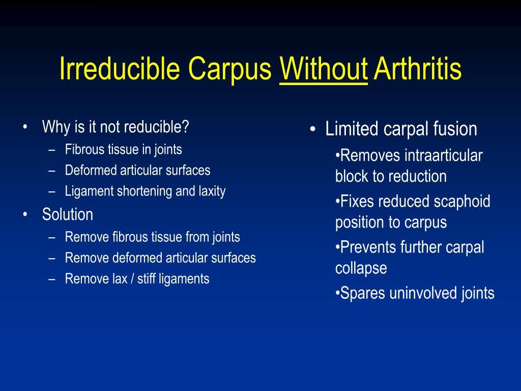 Irreducible Carpus