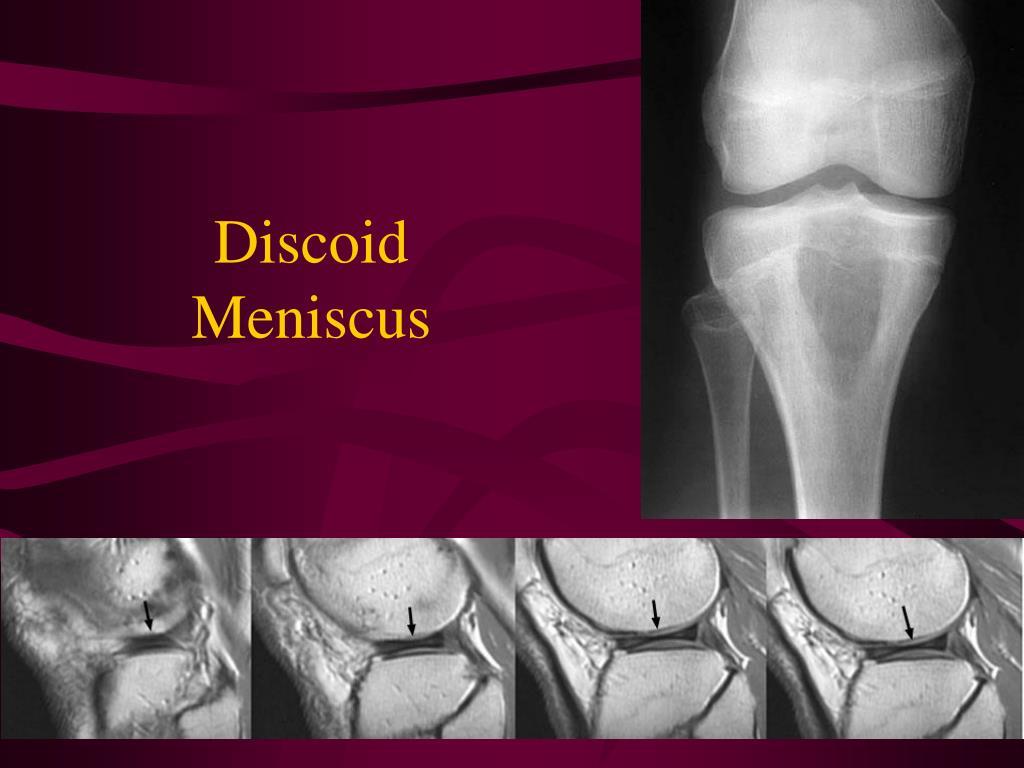 Discoid Meniscus