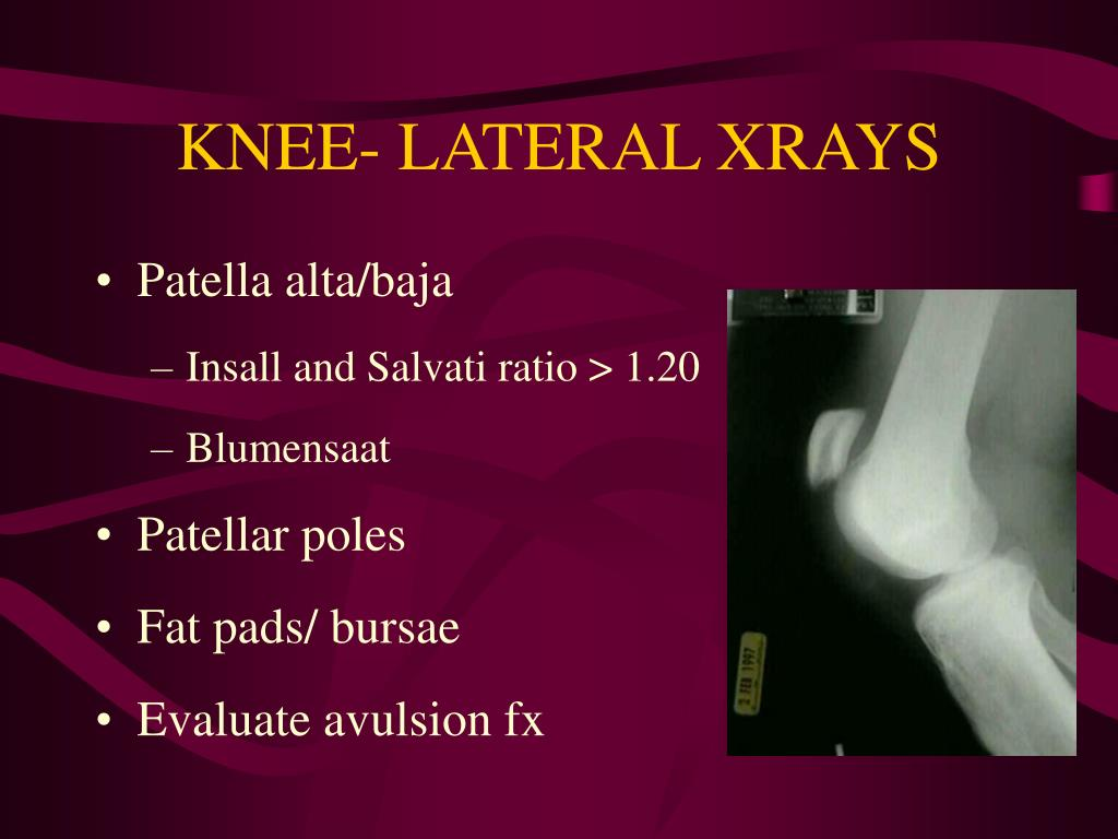 KNEE- LATERAL XRAYS