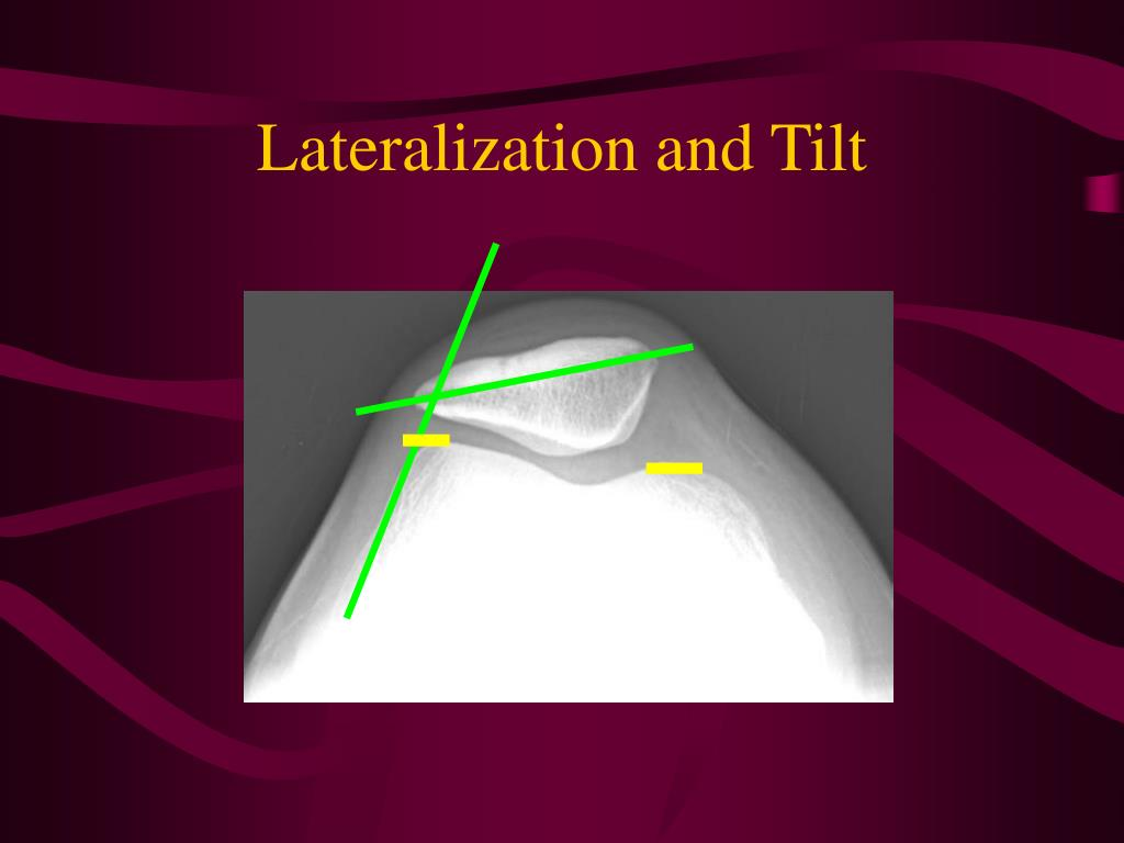 Lateralization and Tilt
