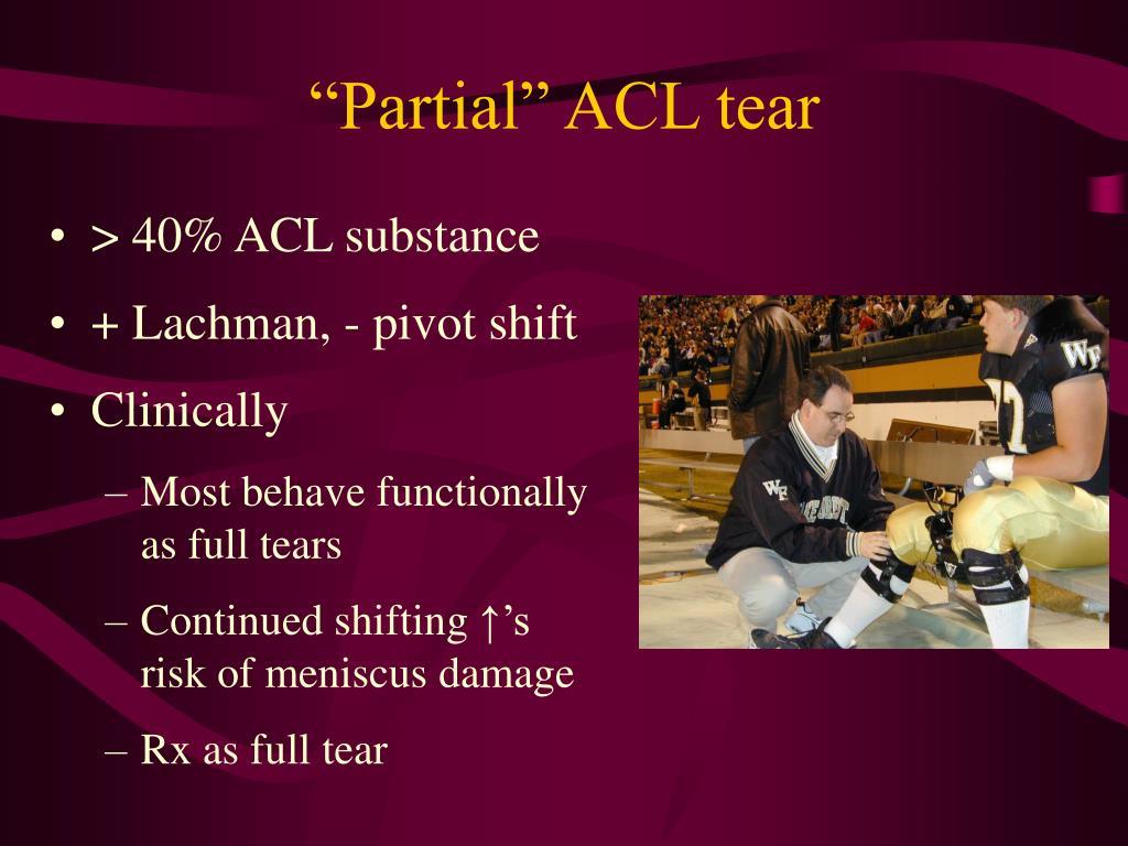 """Partial"" ACL tear"