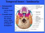 temporal bones landmarks32